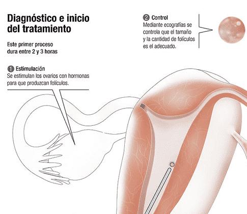 La Fecundación in Vitro con óvulos propios y semen de la pareja, paso a paso